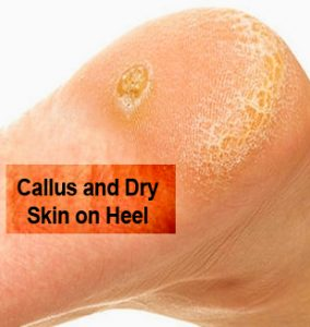 Callus and hard skin on the heel